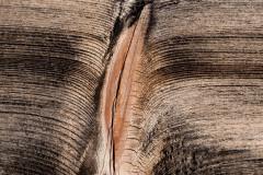 Vagina nach der Geburt