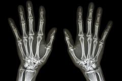 Schwanger röntgen lassen?