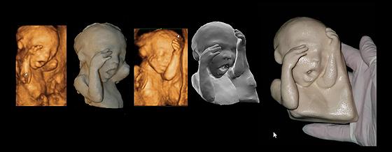 Lebensgroße Plastik eines Babys in der 21. SSW
