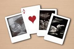 Ultraschallbilder-Quiz: Was ist das?