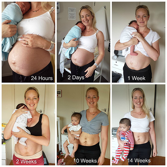 Julie Bhosale: Postpartum body