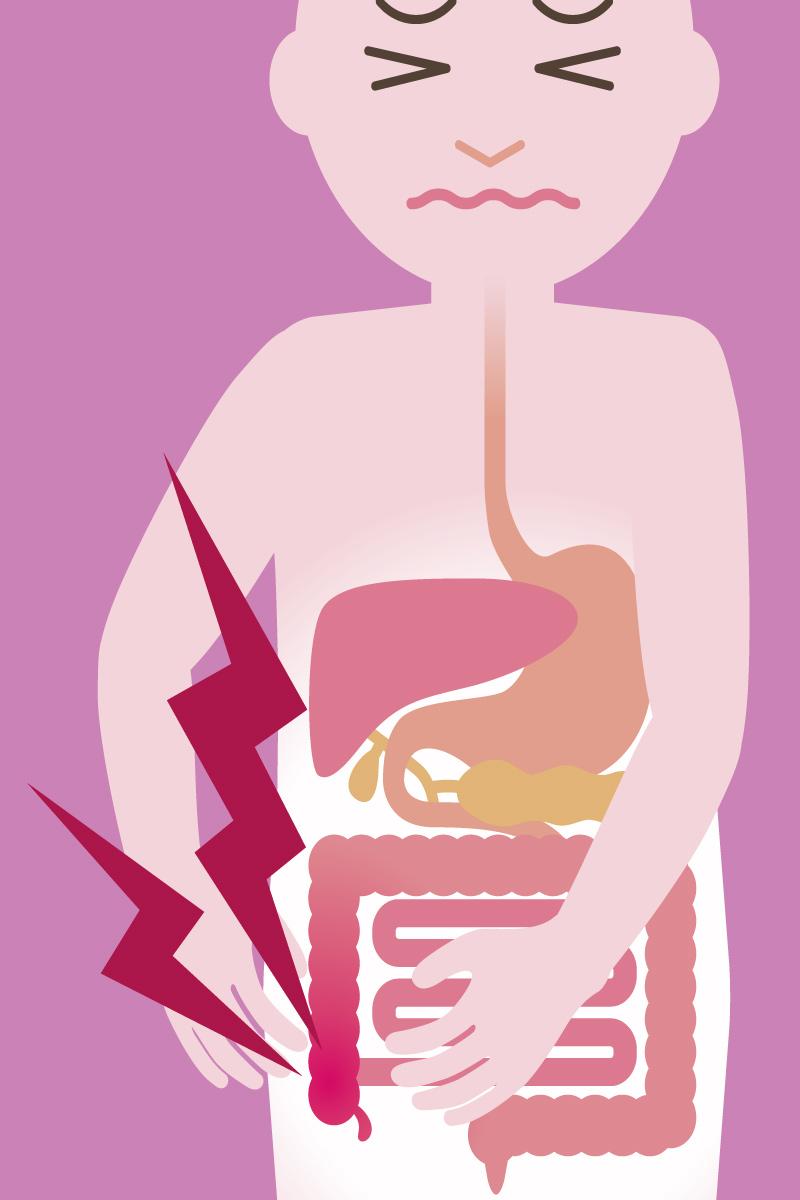 Appendizitis: Symptome
