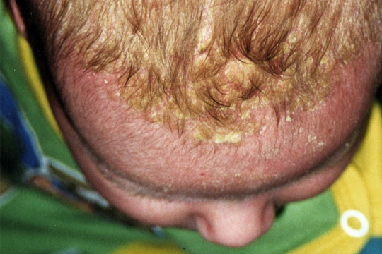 Hautveränderungen: Milchschorf