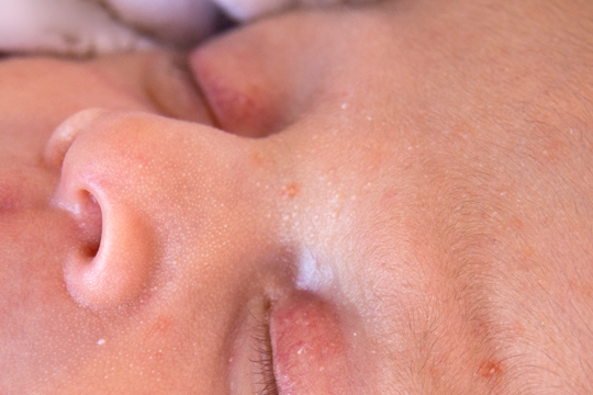 Hautveränderungen Baby: Grießkörner