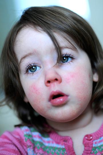 Hautausschlag bei Scharlach