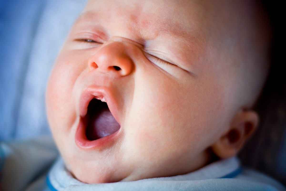 Baby gähnt, Mundsoor