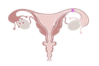 Eine Eileiterschwanerschaft ist selten: Sie tritt bei 1 % der Schwangerschaften auf.