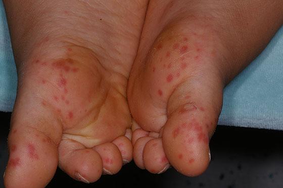 Typischer Ausschlag der Hand-Mund-Fuß-Krankheit an den Füßen.