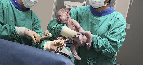 Kaiserschnitt im OP-Saal