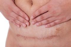 Kaiserschnittnarbe