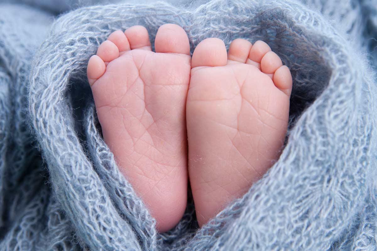 Verformte Babyfüßchen: Das steckt dahinter