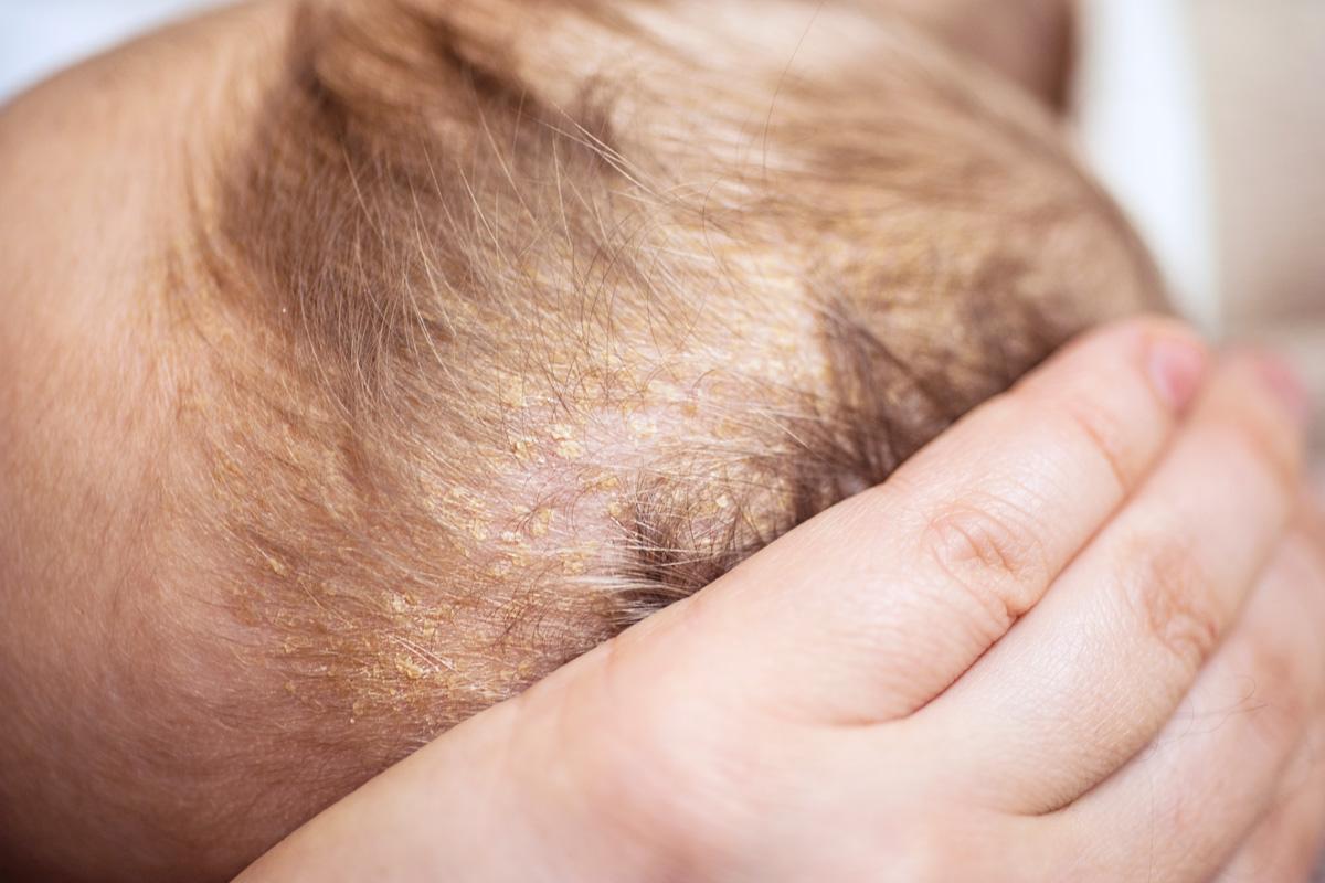 Kopfgneis ist nicht gleich Milchschorf