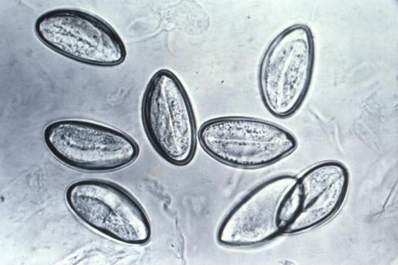 Eier des Madenwurms unter dem Mikroskop