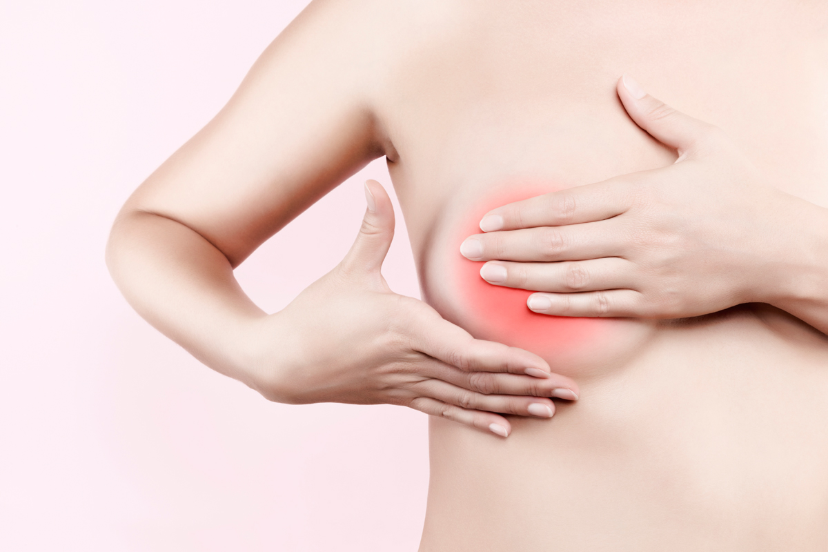 Mastitis: Frau mit Brustentzündung