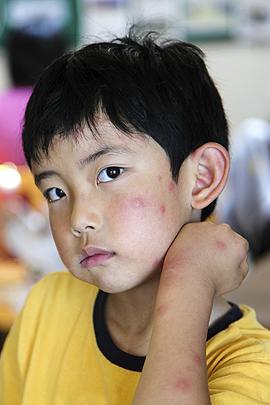 Mückenstiche bei einem kleinen Jungen