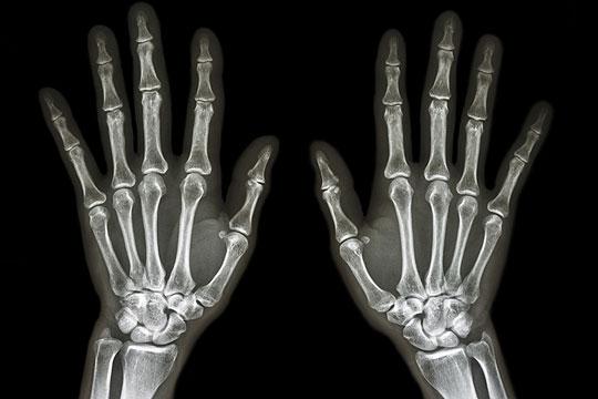 Darf ich mich in der Schwangerschaft röntgen lassen?