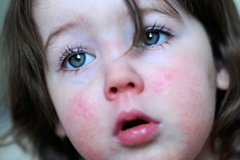 Scharlach Symptome Bilder Und Behandlung Familie De