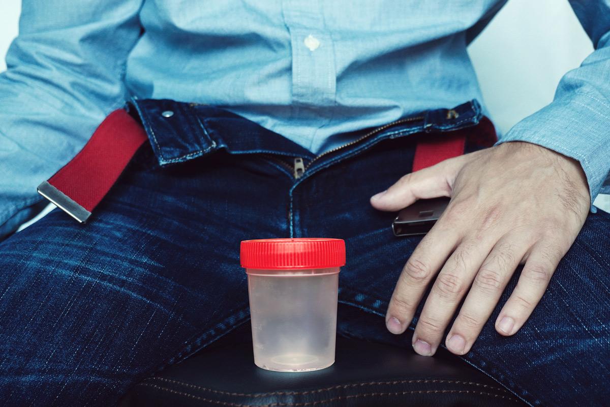 Spermiogramm: Mann mit Behälter