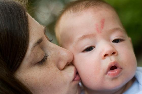 Baby mit Storchenbiss