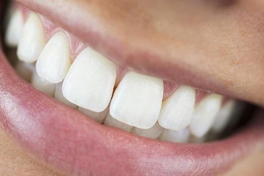 breites Lächeln mit Zähen zeigen