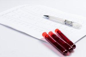 Anti-Müller-Hormon: AMH-Wert kann im Blut gemessen werden