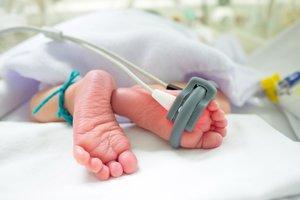 Die Schwächsten und Kleinsten sind die größten Sorgenkinder der Neonatologie.