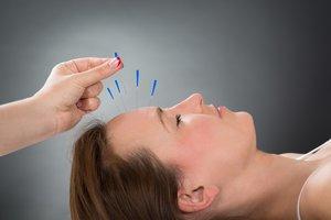 Akupunktur bei Kinderwunsch