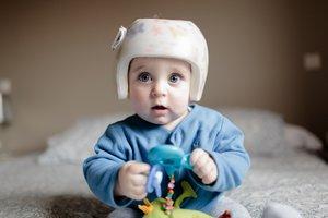 Manche Kleinkinder brauchen schon vor dem Fahrradhelm eine Kopforthese.
