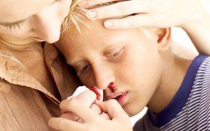 Oberstes Gebot bei Nasenbluten ist: Ruhe bewahren!